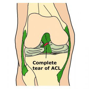 ACL injury Complete Tear Anterior Cruciate Ligament Image