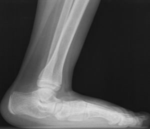 Flat Foot x-Ray left
