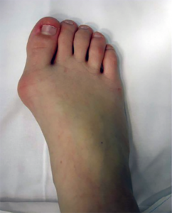 Hallux Valgus Bunion Child Picture