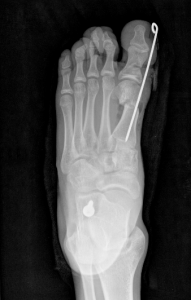 Hallux Valgus Bunion Child x-Ray Post_Op