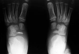 Kohler Disease Feet X-Ray