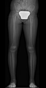 Leg Lenght Discrepancy Pre-Op x-Ray