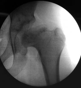 Perthe Disase Pre Op x-Ray Prof. Nicola Portinaro Orthopedic Surgeon
